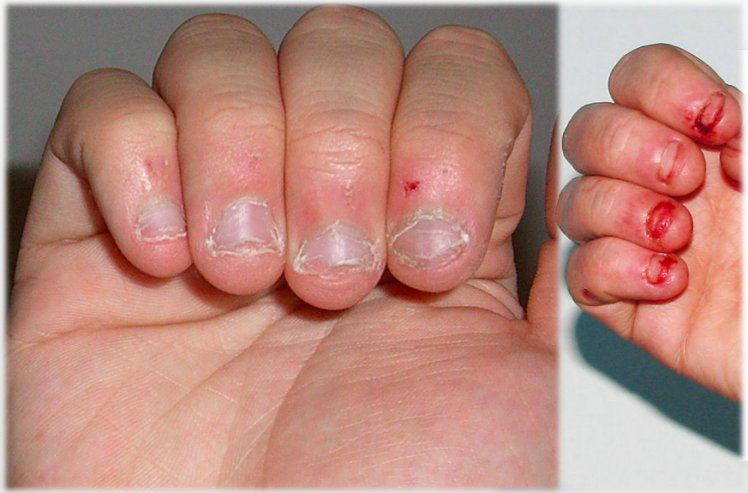 Four (4) Reasons To Stop Biting Your Nails - Ghafla! Ghana