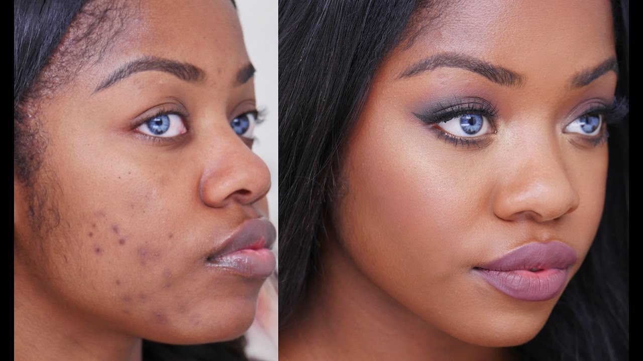 How To Treat Pimples Using Simple Things Found At Home