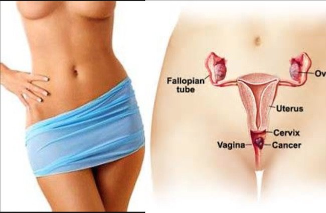 Health Alert Stop The Use Of Vaginal Tightening Creams They Will Make You Infertile