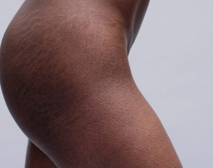 Five(5) Tips To Help Avoid Stretch Marks