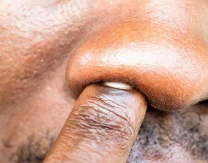 Health Alert: Picking Your Nose Isn't Just A Disgusting Habit – It Can Cause A Deadly Illness