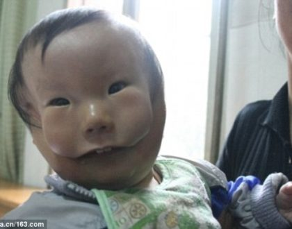 Strange world! Poor little boy born with rare birth defect that makes him look like he has two faces (Photos)