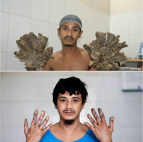 'Tree man' with bark for hands CURED after 16th surgery