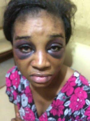 woman-beaten-by-husband