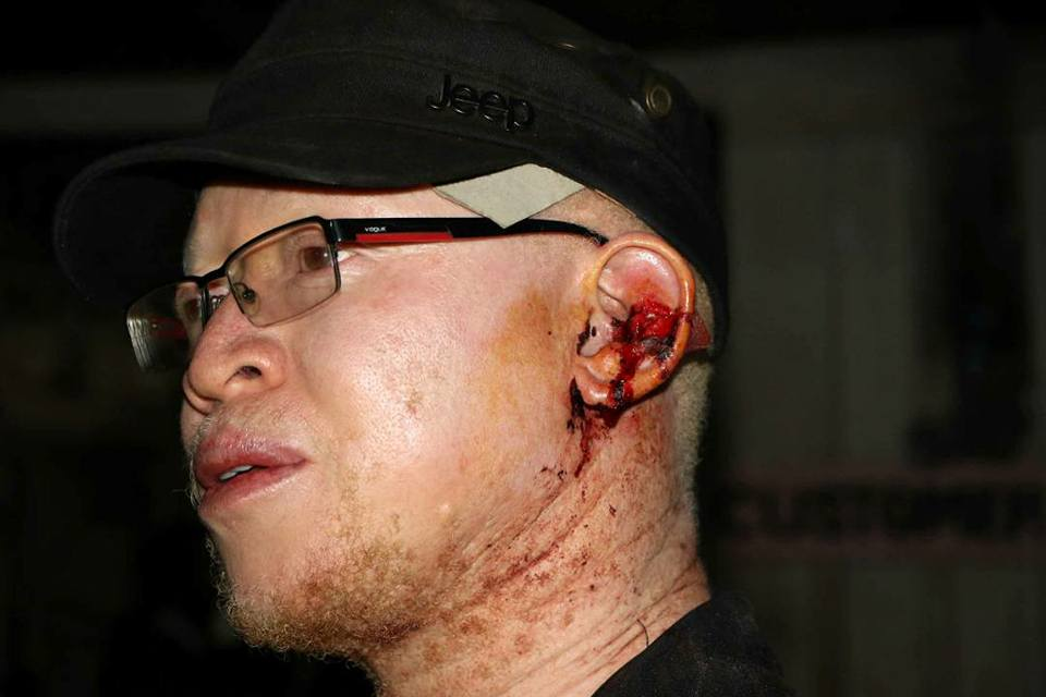 """Even after cutting your own ear with a razor blade you still lost?"" Isaac Mwaura's concession speech attracts hate and criticisms"