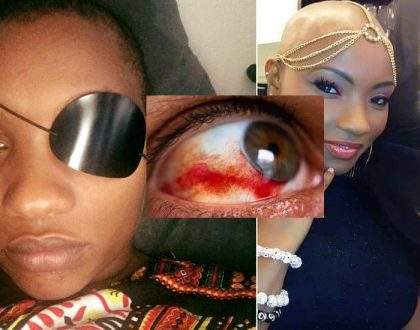 """I woke up and I couldn't see with my right eye"" Barbara Chepkoech explains how she lost her sight in right eye (Photos)"