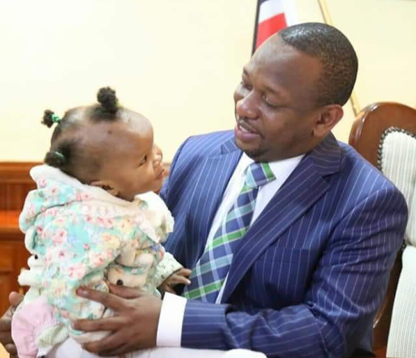 Mike Sonko steps up to support a 1 year old baby girl in urgent need of eye surgery