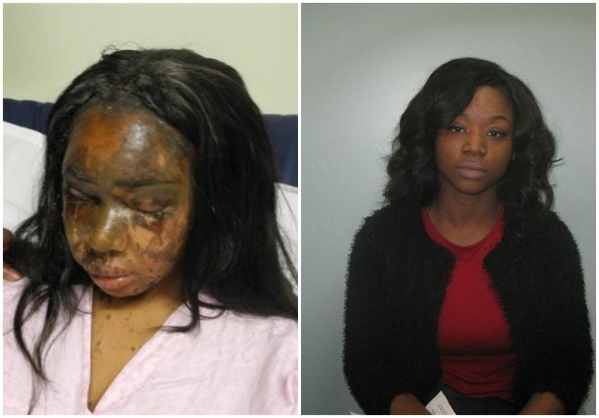 25-year-old lady recounts how her best friend threw acid in her face then came to her birthday party