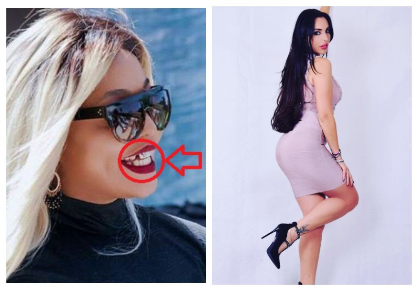 """Please go see a dentist"" Drama continues as Harmonize's girlfriend savagely attacks Jacqueline Wolper"