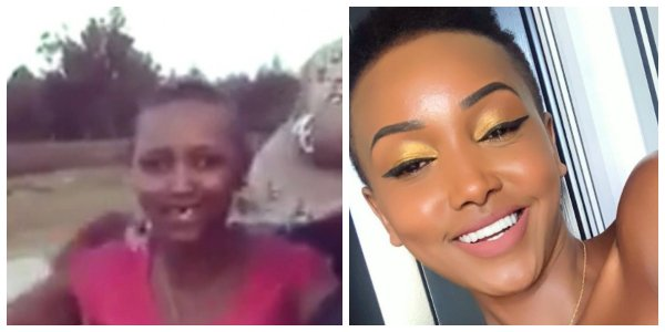 Huddah finally explains what happened to her tooth and how she managed to fix it