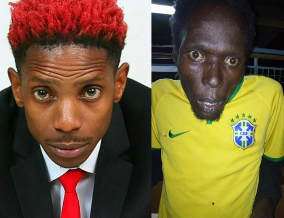 Eric Omondi:We would get calls from places as far as Mombasa to go pick our brother