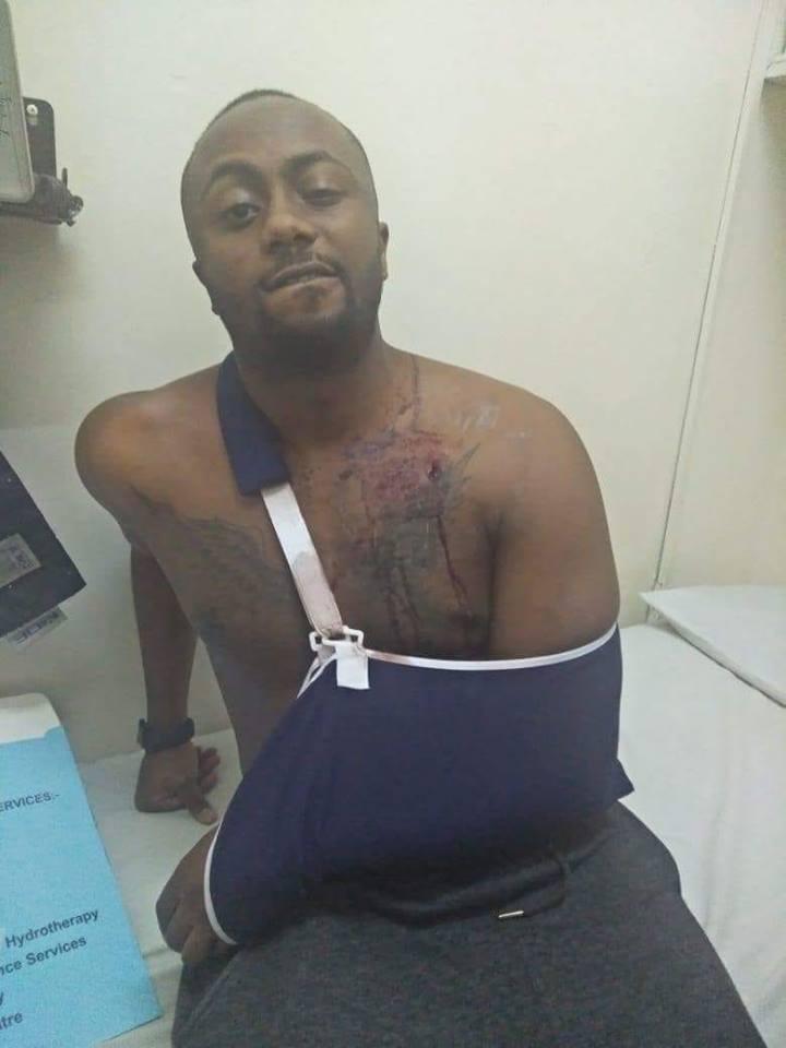 Photos of Joe Irungu showing gunshot wounds while wearing a bad-boy face leaves many angered