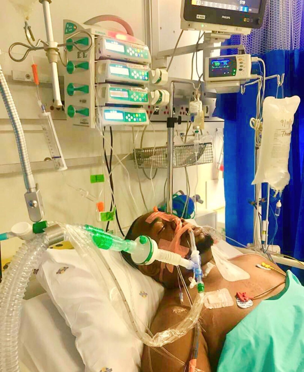 Ommy Dimpoz emotional testimony after finally walking out of hospital alive (Video)