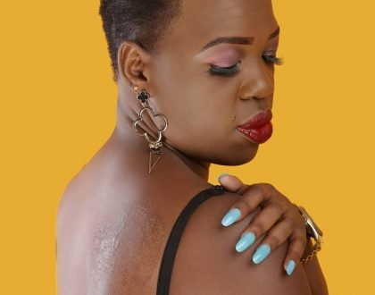 Ruth Matete explains why she has a scar on her back: I got burned by porridge