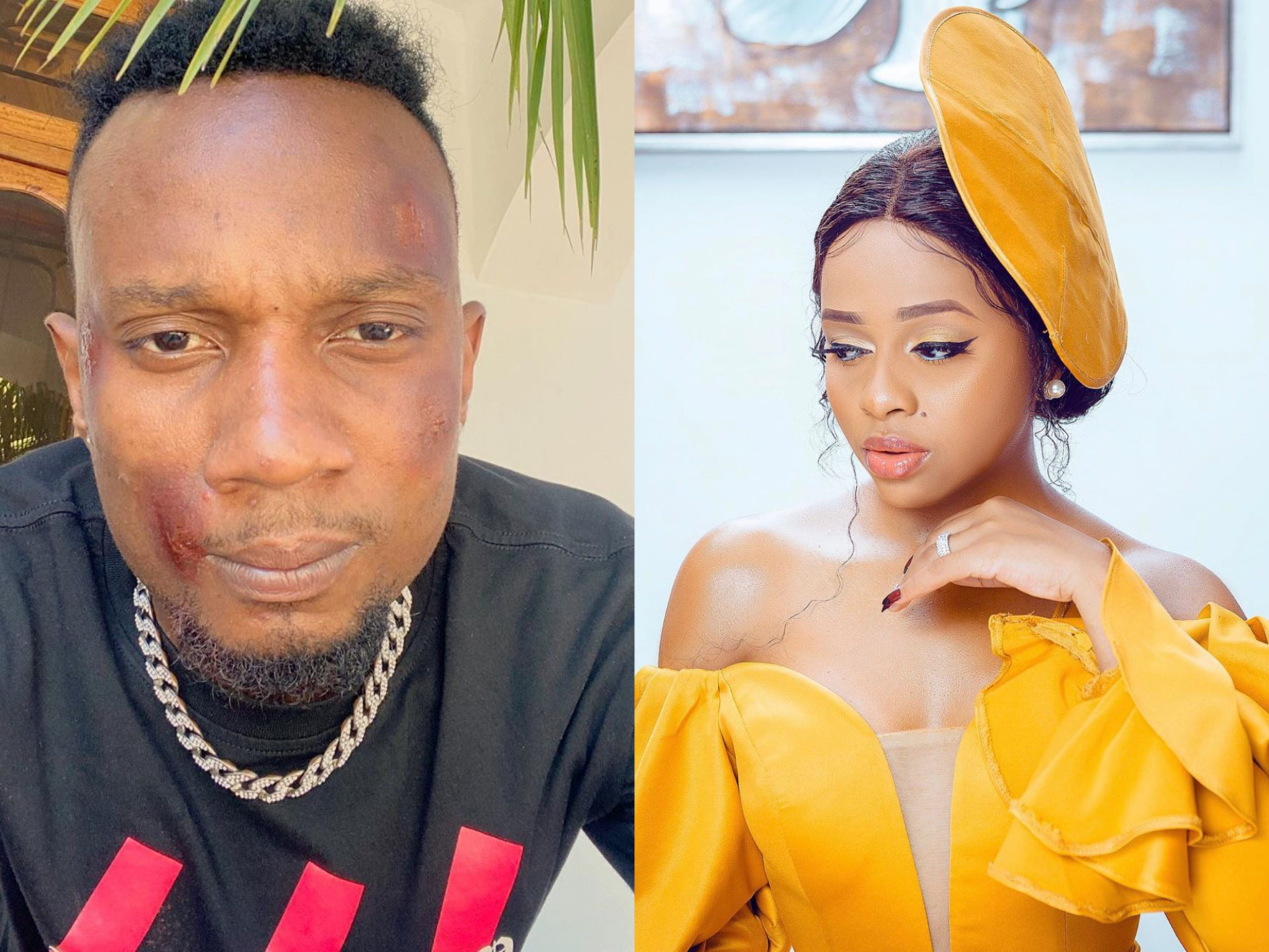Nandy's boyfriend beaten black and blue by unknown persons (Photo)