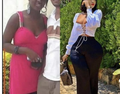 Shock! Photo of Harmonize's alleged side chick before and after plastic surgery