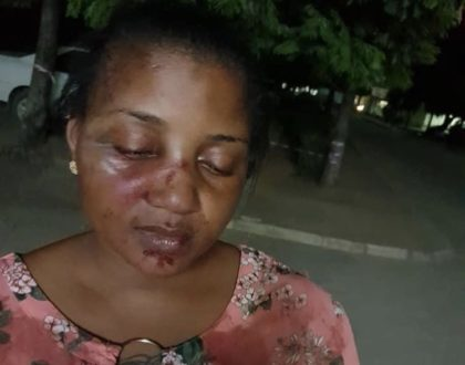 Tanzanian celebrities react to Shilole's horrifying photos after receiving serious beating from husband