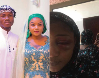 Shilole left looking unrecognizable after receiving serious beating from young husband (Photos)