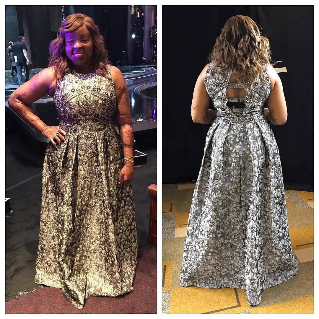 Americas got talent 2017 plane crash - Remember Kechi Okwuchi One Of The Survivors Of The Sosoliso Plane Crash That Has Been In The America S Got Talent Competition