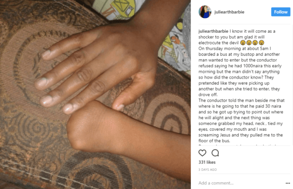 Youth Corps Member Escapes Ritualists Thanks to her Physical Deformity