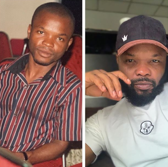 Ncomedian Nedu before and after photo