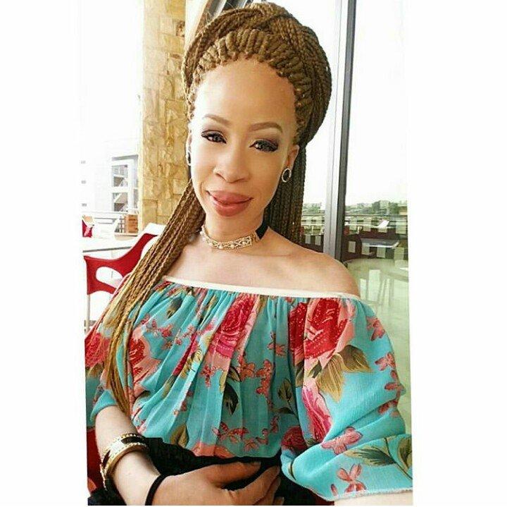 Albino model Refilwe Modiselle laments the industry