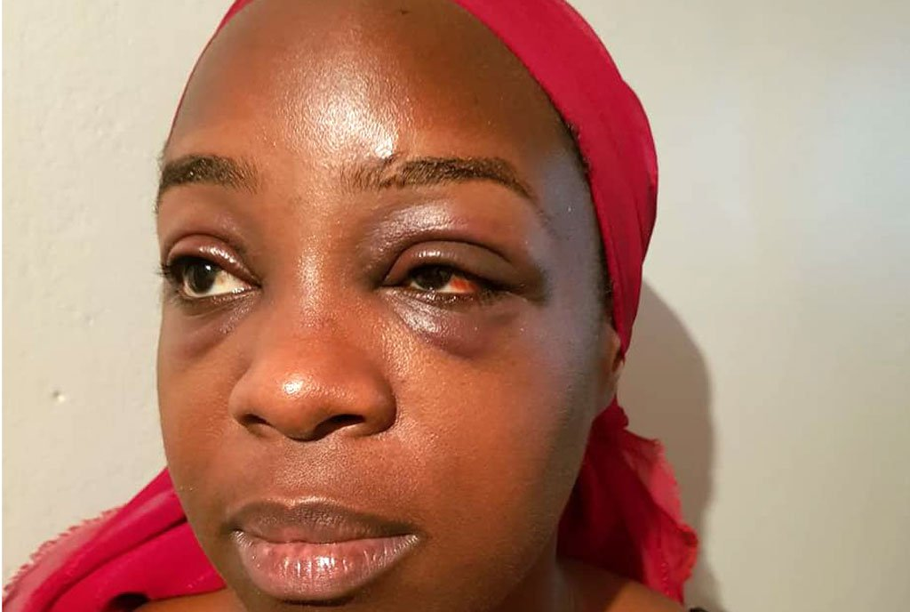 Angella Katatumba Beaten and Robbed at chicken Tonight