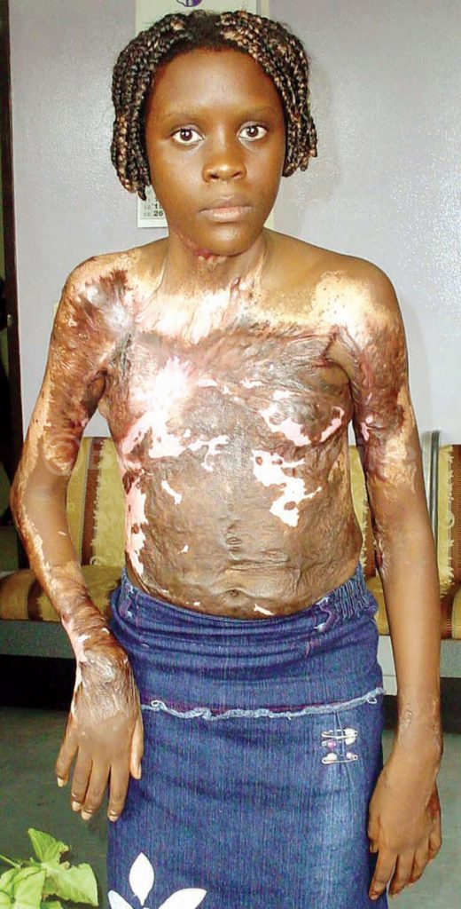 Remember the Burn survivor Aisha Nabukeera? She is now a University Graduate