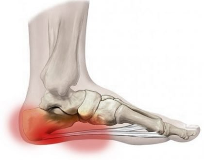 Do you Have Pain on Your Heel? Here is Why.