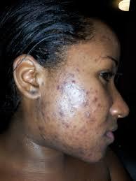 Skin Care Tips to Prevent Acne Break outs
